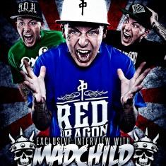 Madchild – August 2014